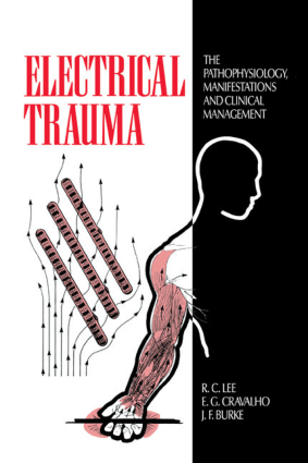 Electrical Trauma the Pathophysiology, Manifestations and Clinical Management by R.C. Lee, E.G. Cravalho and J.F. Burke